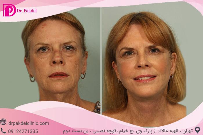 Face-lift-30