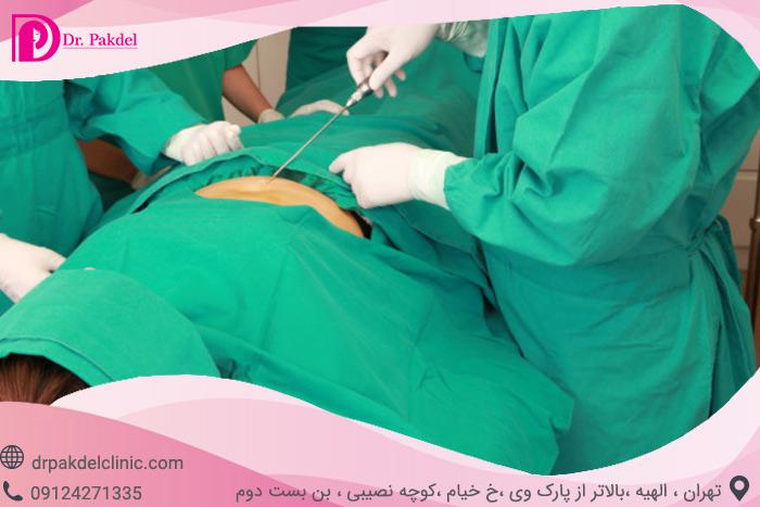 Liposuction-cellulite-7