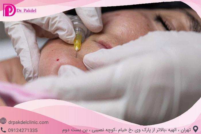 carboxytherapy-4