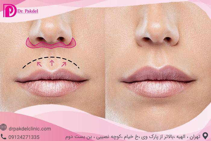 Central lip lift-10