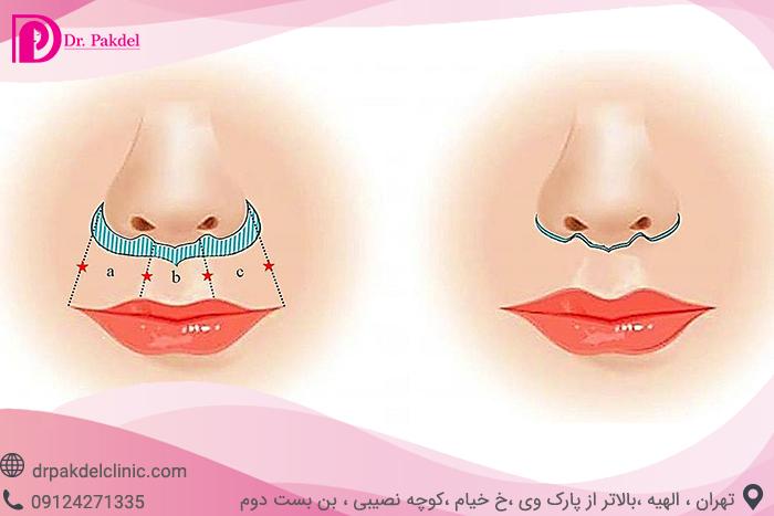Central lip lift-6
