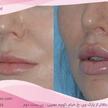 Central lip lift-8