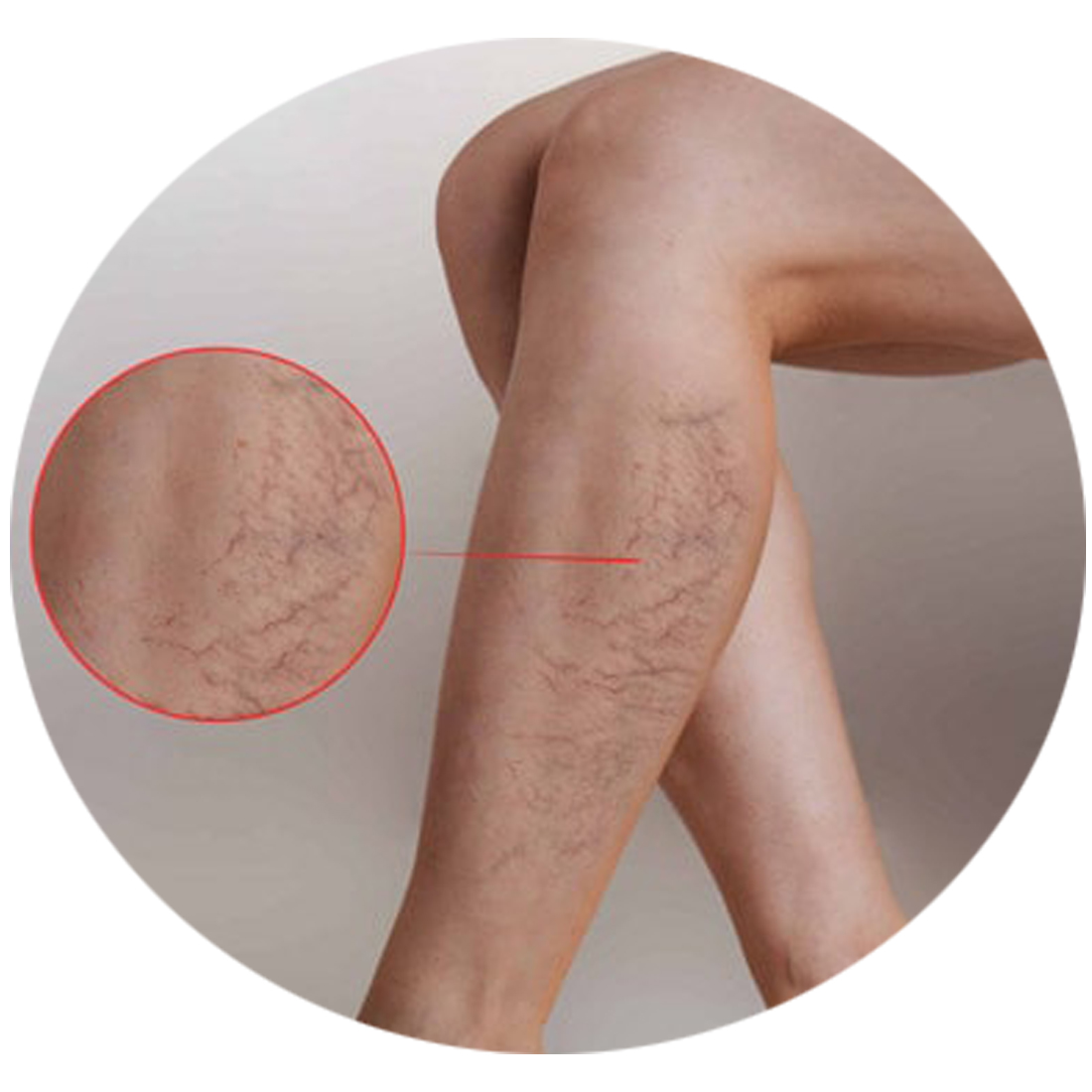 Sclerotherapy-1