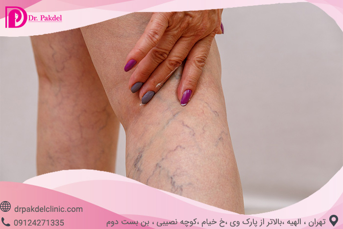 Sclerotherapy-3