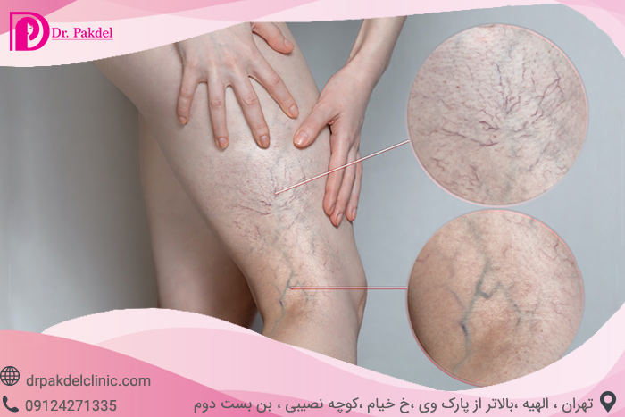 Sclerotherapy-5