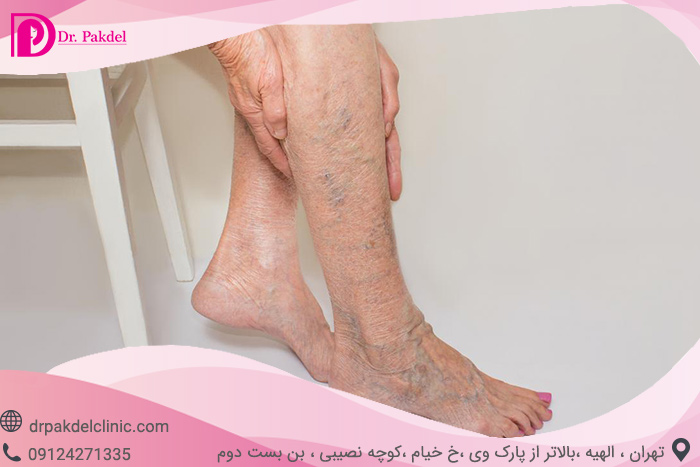 Sclerotherapy-7