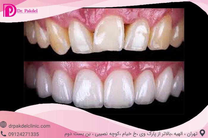 Dental composite-1