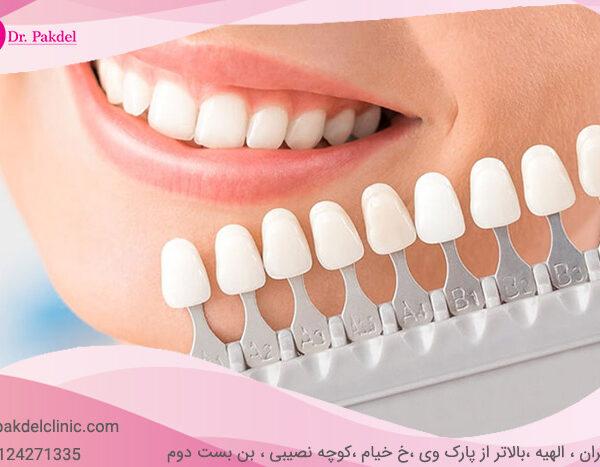 Dental composite-12
