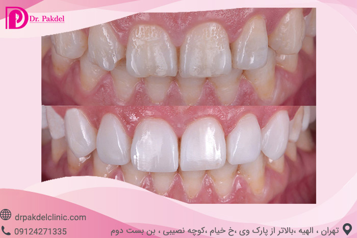 Dental composite-9