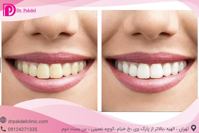 Tooth bleaching-11