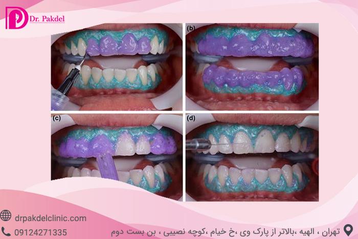 Tooth bleaching-12