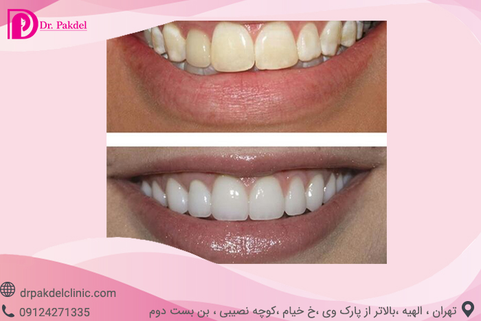 Tooth bleaching-14