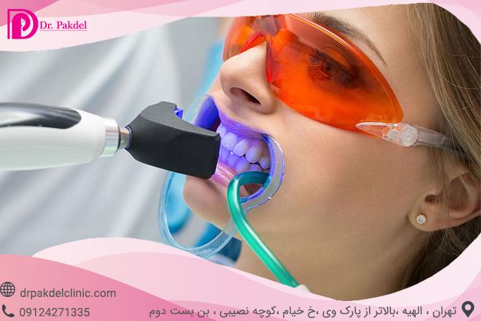 Tooth bleaching-15