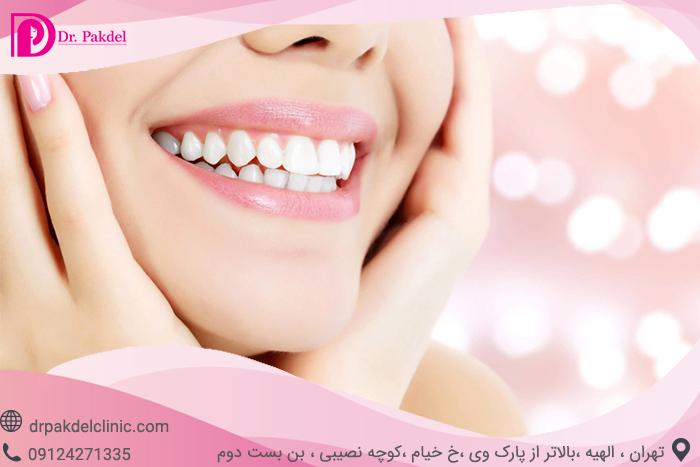 Tooth bleaching-16
