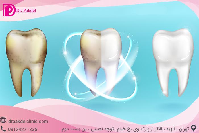 Tooth bleaching-2