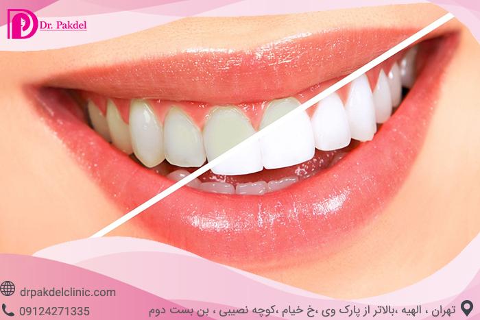Tooth bleaching-3