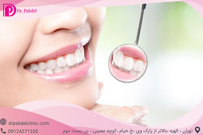 Tooth bleaching-4