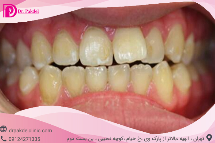 Tooth bleaching-5