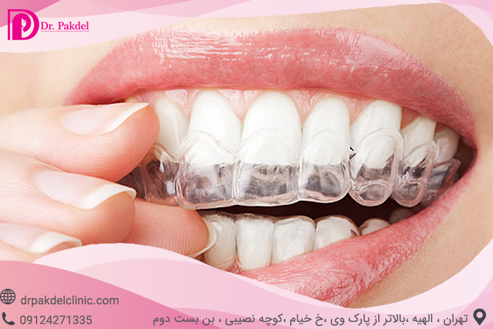 Tooth bleaching-7