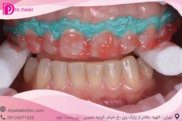 Tooth bleaching-9