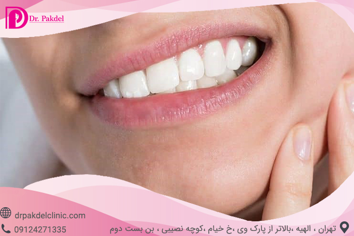 Tooth root canal-1