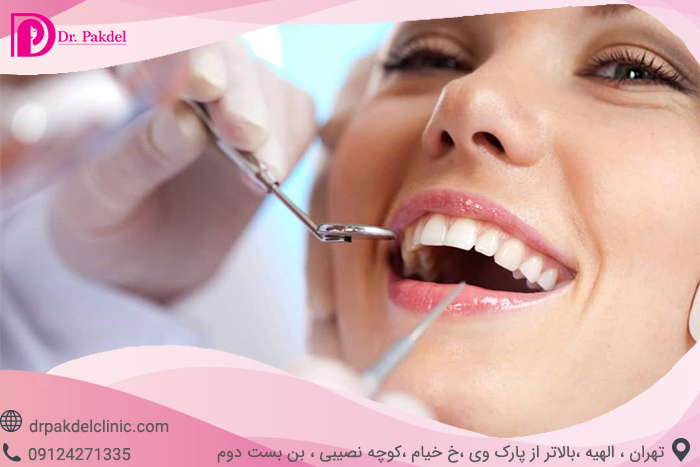 Tooth root canal-13