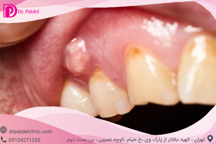 Tooth root canal-16