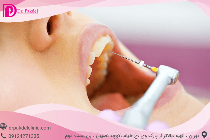 Tooth root canal-18