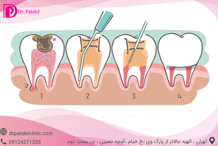 Tooth root canal-2