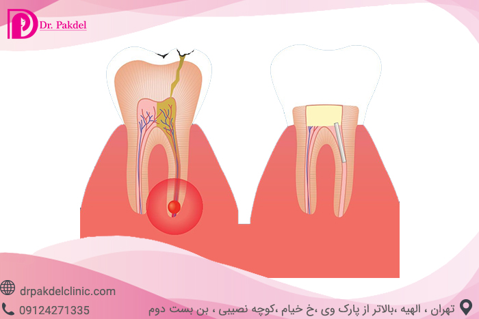 Tooth root canal-3