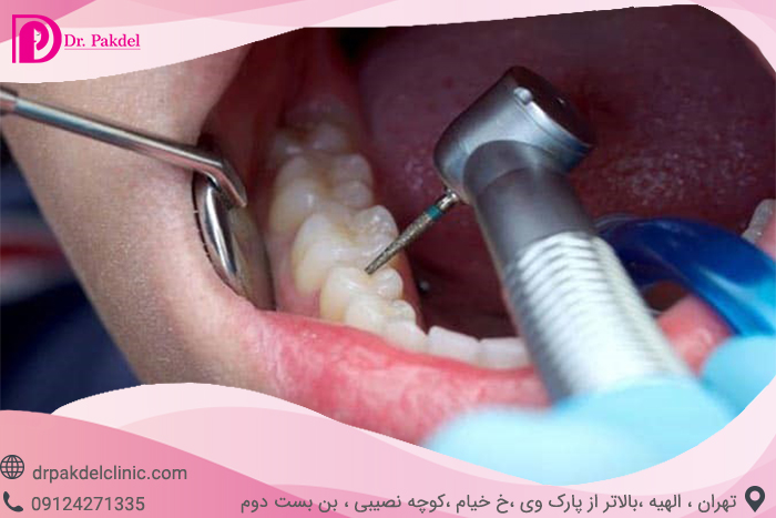 Tooth root canal-4