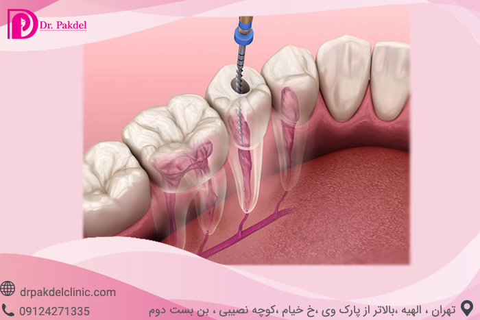 Tooth root canal-5