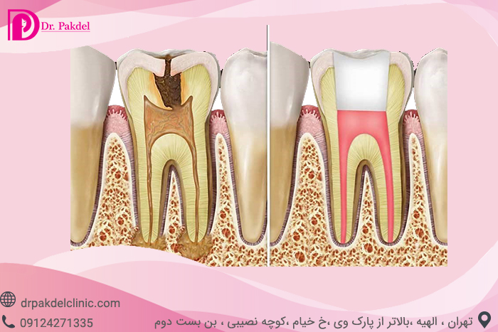 Tooth root canal-6