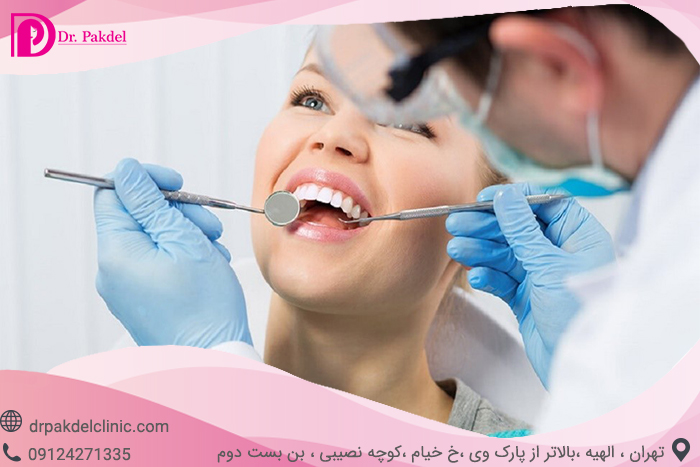 Tooth root canal-8