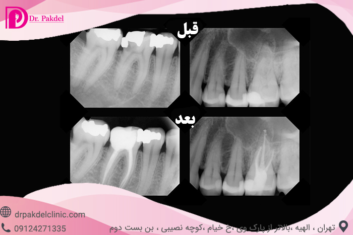 Tooth root canal-9